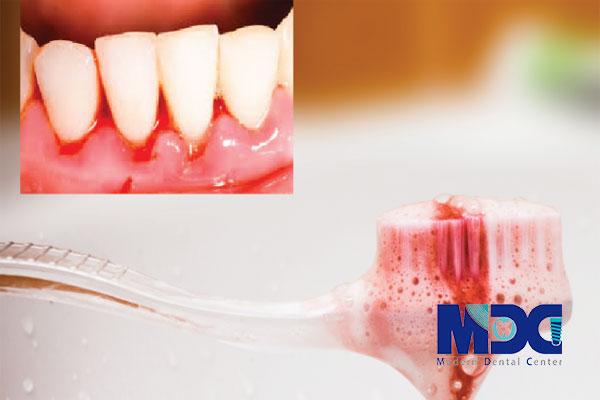 خونریزی-لثه-کلینیک-دندانپزشکی-مدرن