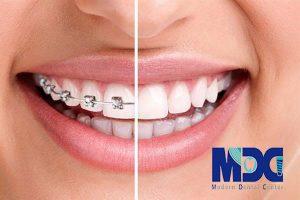 ارتودنسی زبانی-کلینیک دندان پزشکی مدرن
