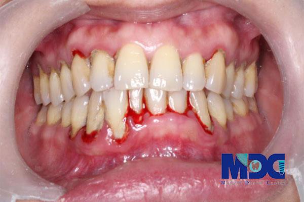 التهاب و خونریزی لثه چیست؟