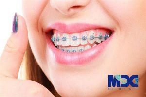 ارتودنسی متحرک-کلینیک دندانژزشکی مدرن