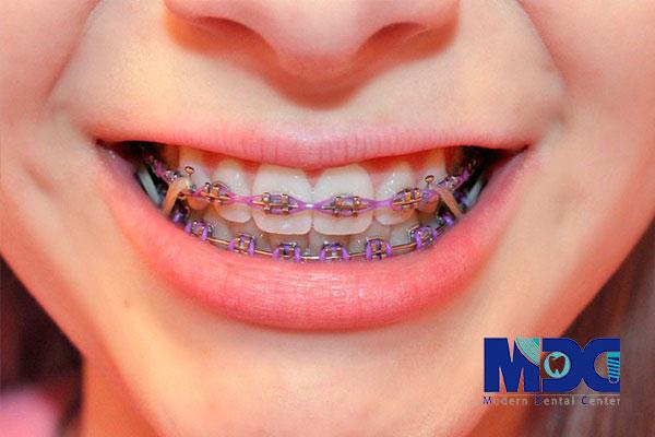 ارتودنسی-کلینیک دندانژزشکی مدرن
