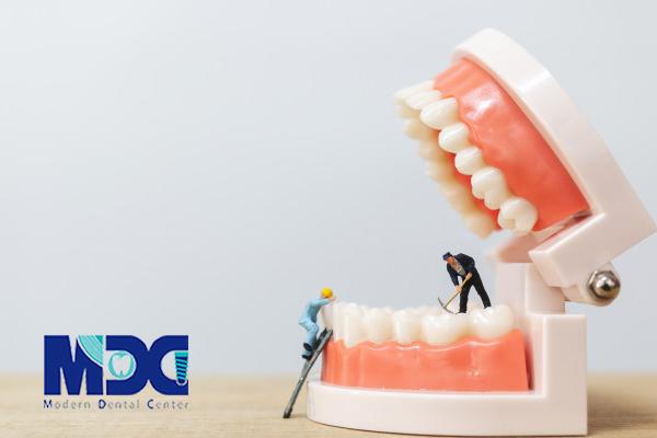 باید دندان از دست رفته را ایمپلنت کنیم