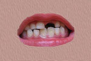 شکستن دندان عصب کشی شده