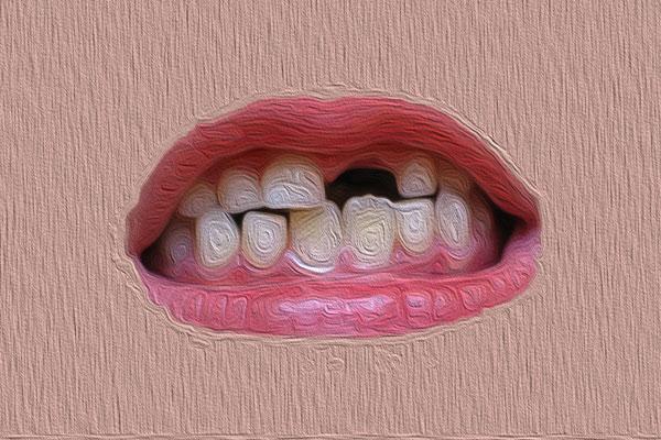 شکستن دندان چطور اتفاق میافتد و چطور جلوی آن را بگیریم؟