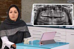 کشیدن دندان عقل و عوارض موقت و دایم آن