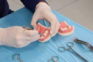 آموزش جراحی ایمپلنت