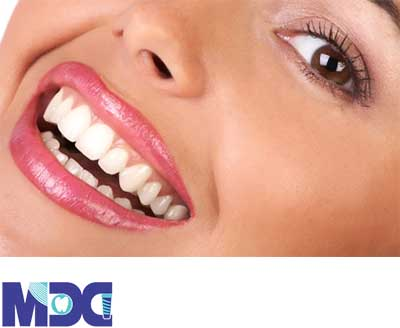 جرم گیری خانگی دندان | هزینه جرم گیری دندان ۹۹