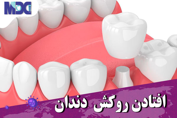 با افتادن روکش دندان در زمان کرونا باید چه کنیم ؟
