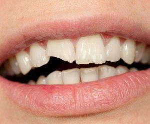 دندان شکسته|چگونه در زمان کرونا مانع بدتر شدن دندان شکسته خود شویم؟