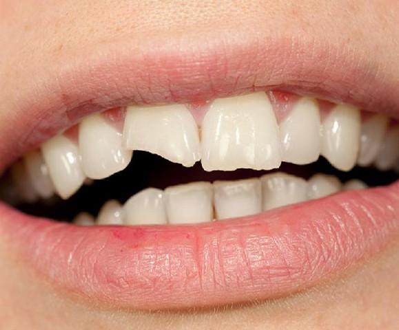 You are currently viewing دندان شکسته|چگونه در زمان کرونا مانع بدتر شدن دندان شکسته خود شویم؟