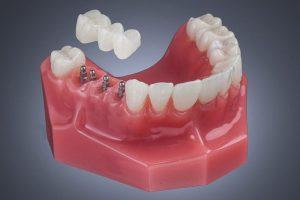 مینی ایمپلنت دندان چیست؟