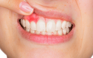 عفونت دندان