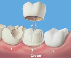 روکش دندان