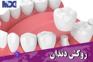 مشکلات روکش دندان در دوران کرونا چگونه رفع میشود ؟