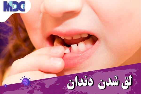 لقی دندان در زمان کرونا | آیا لقی دندان قابل درمان است ؟