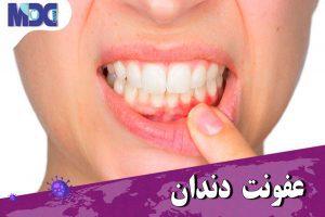 عفونت دندان و راه های درمان آن در زمان کرونا
