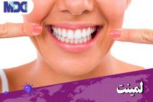 مراقبت های لمینت دندانی در زمان کرونا