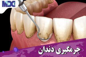 جرمگیری دندان در زمان کرونا