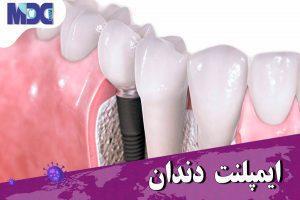 ایمپلنت| دکتر حمیدی
