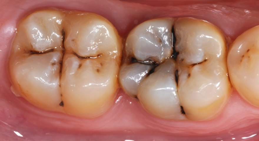 عمق پوسیدگی در دندان 7
