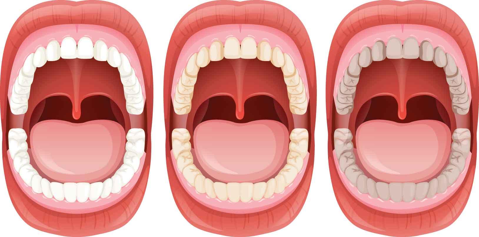 بهداشت دهان و دندان و نقش تعیین کننده در انجام موفق ایمپلنت 1 روزه