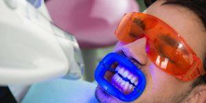 سفید کردن دندان ها و روش های آن