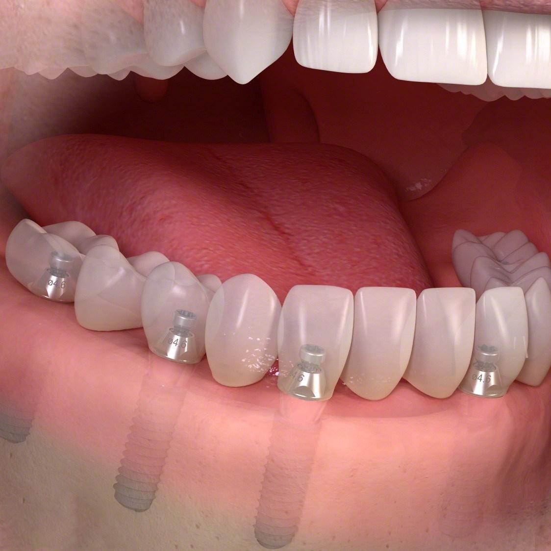 چرا در طرح درمان ایمپلنت all on 4 از دندان مصنوعی استفاده می شود