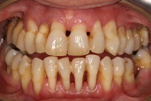 مشخص شدن ریشه دندان