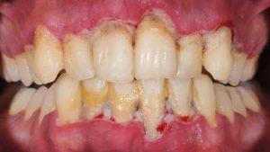 مشکلات شدید لثه بهداشت دهان
