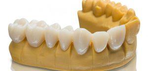 شبیه سازی سه بعدی از دندان بیمار