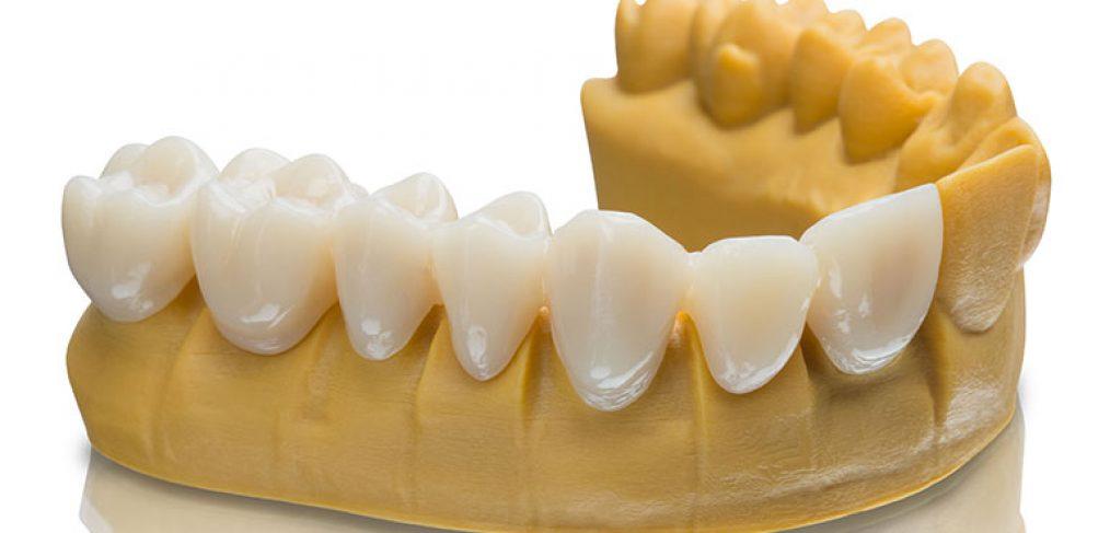 شبیه سازی سه بعدی از دندان بیمار-کلینیک دندان پزشکی مدرن