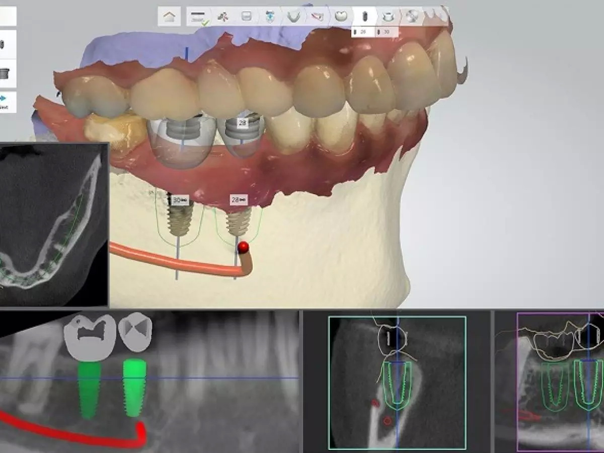 شبیه ساز سه بعدی دندان-کلینیک دندان پزشکی مدرن