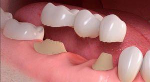 بریج های دندانی