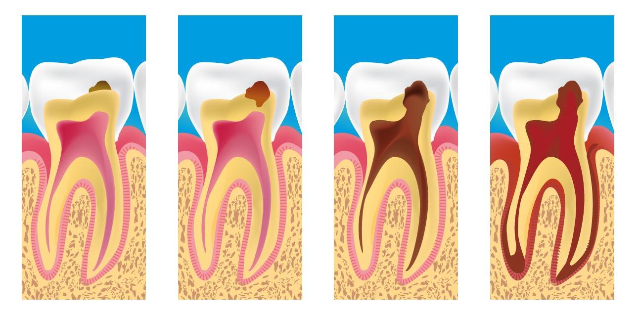 پیشرفت پوسیدگی دندان