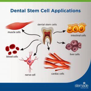 سلول های بنیادی دندان