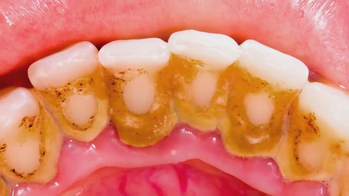 عدم رعایت بهداشت دهان و دندان