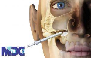 جراحی سینوس لیفت و انواع آن