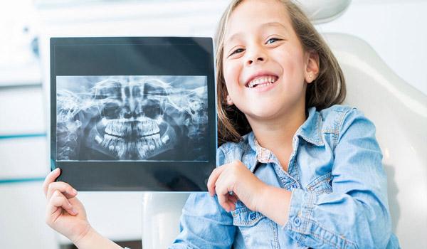 رادیو گرافی دندان کودکان