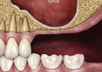 سینوس لیفت باز (Open Sinus Lift)