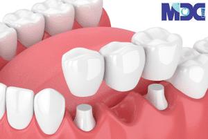 بریج دندانی