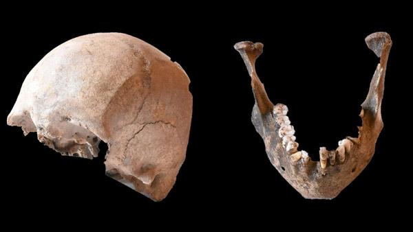 تحلیل استخوان