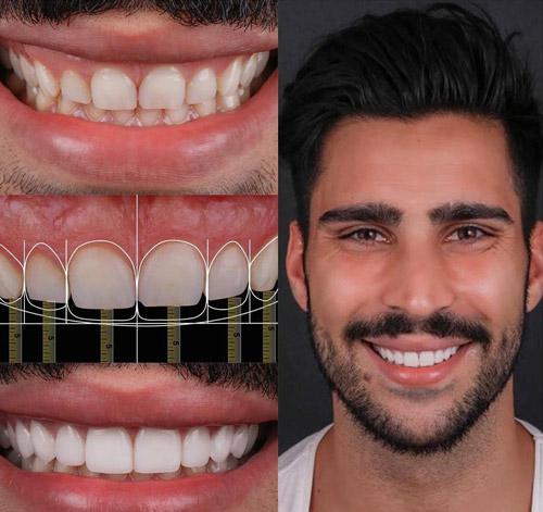 طراحی لبخند دیجیتالی