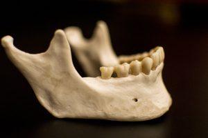 تحلیل استخوان فک بعد از کشیدن دندان