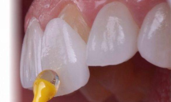 چسباندن روکش لمینت-کلینیک دندان پزشکی مدرن