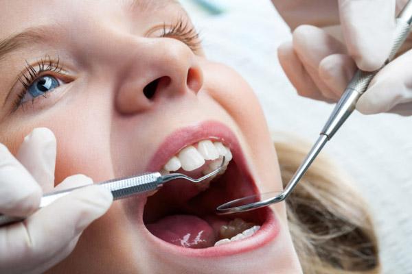 کشیدن دندان شیری