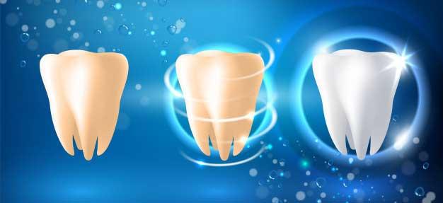 بلیچینگ و بازگرداندن رنگ دندانها به حالت قبل