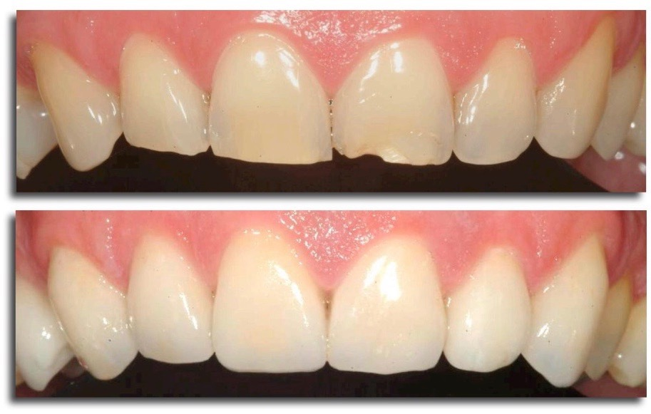 ترمیم کامپوزیت دندان و دندانهای لب پر و شکسته