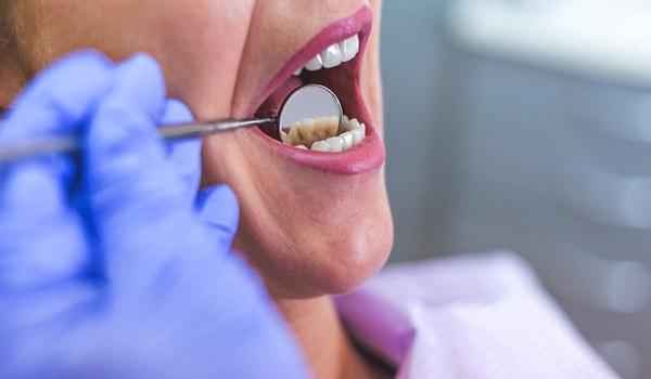 درمان عفونت بعد از کشیدن دندان