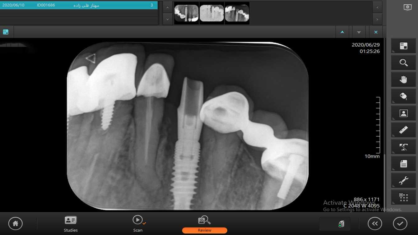 نشست اباتمنت درست-کلینیک دندان پزشکی مدرن