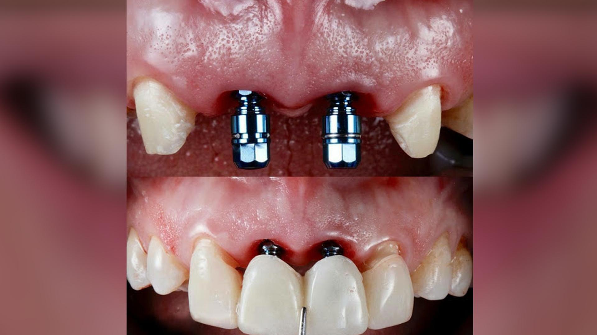 کاشت دندان و طرح لبخند